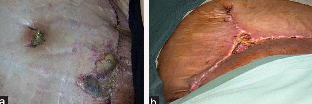 Серома, некроз жировой ткани и кожи Расхождение краев раны вследствие неудачно проведенной абдоминопластики
