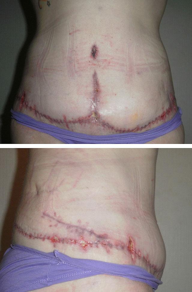 Осложнения после проведения абдоминопластики
