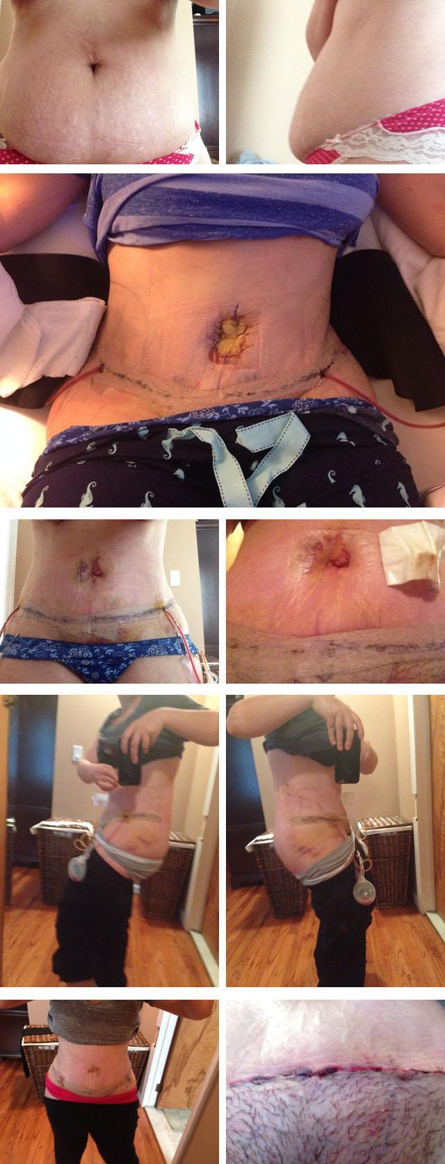 Реабилитация после абдоминопластики