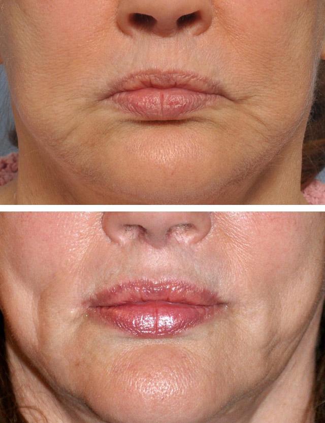 Нитевой лифтинг периоральной зоны, периоральная липосакция и липофилинг губ