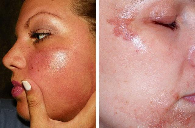 Как отбелить кожу лица от пигментных пятен лимоном