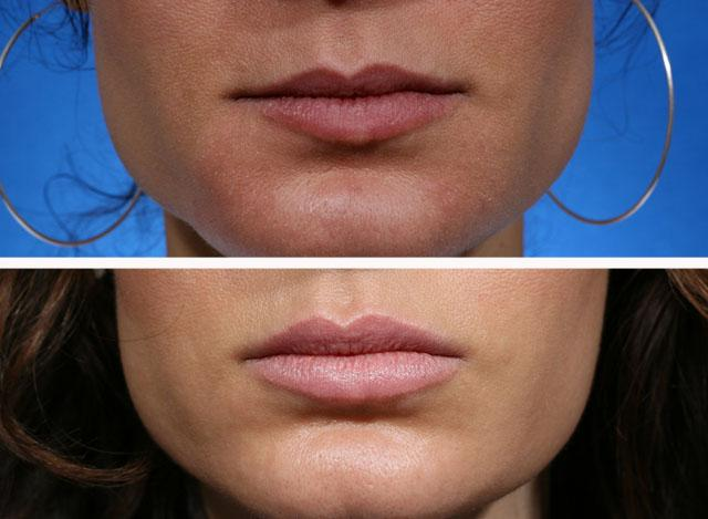 Увеличение губ препаратом Ювидерм