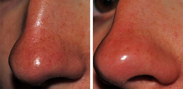 Длинные угри на лице