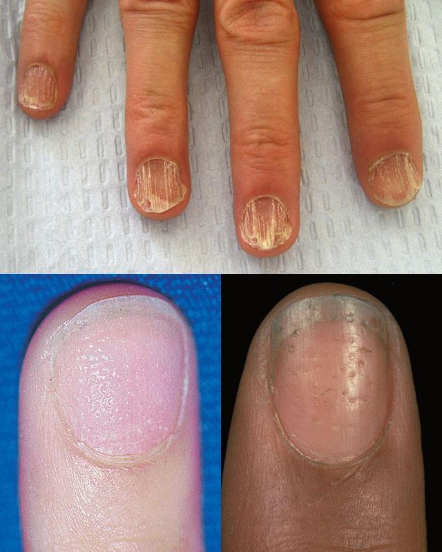 Дистрофия ногтевой пластины при тяжелых проявлениях очаговой алопеции