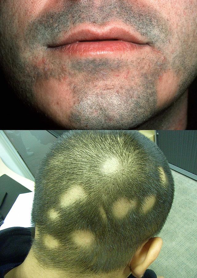 Шампуни от выпадения волос кора что это такое