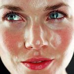 Симптомы и лечение розацеа на лице