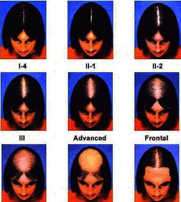 Стадии женского андрогенного облысения