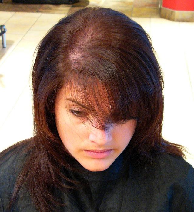 мезотерапия волосистой части головы что это такое