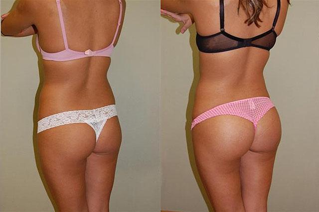 фото до и после увеличения ягодиц
