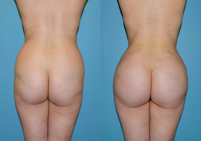 Мужские операции на груди