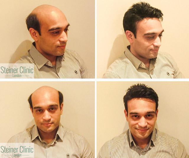 Имплантация волос
