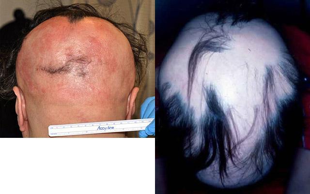 на теле нет волос болезнь