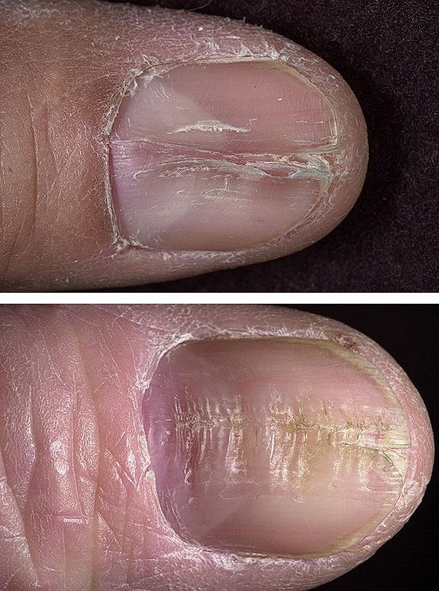 Срединная каналообразная дистрофия ногтевой пластины