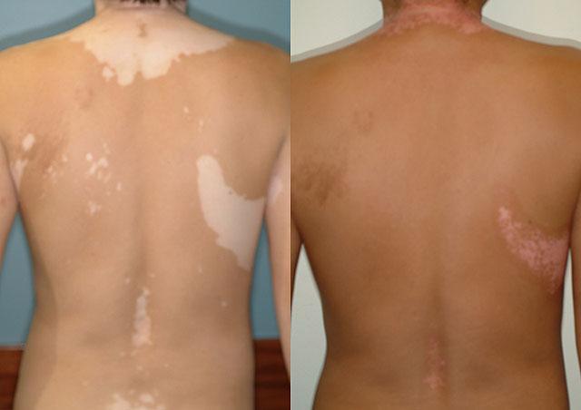 витилиго лечение фото до и после