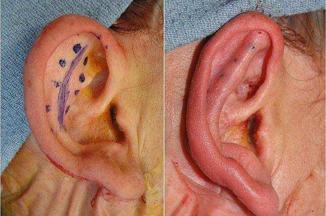 уши после отопластики