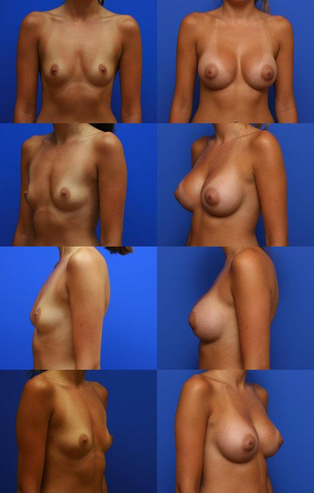 до и после маммопластики - Установка круглого солевого имплантата объемом 390 куб. см, профиль Средний «+». Вид доступа – переареолярный. Расположение имплантата – под мышцу.