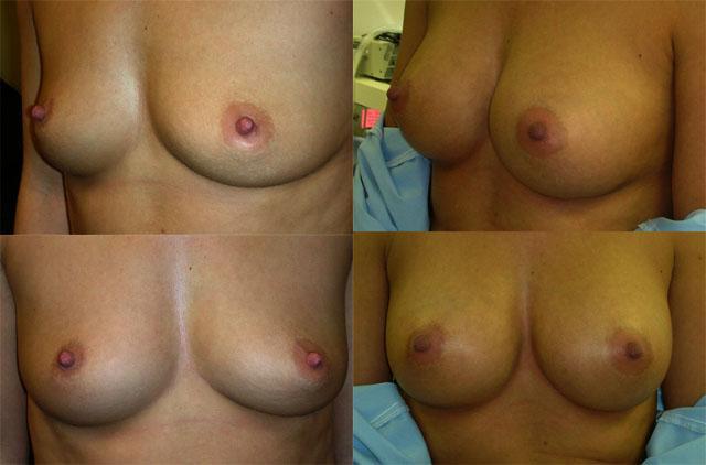 до и после аугментационной маммопластики