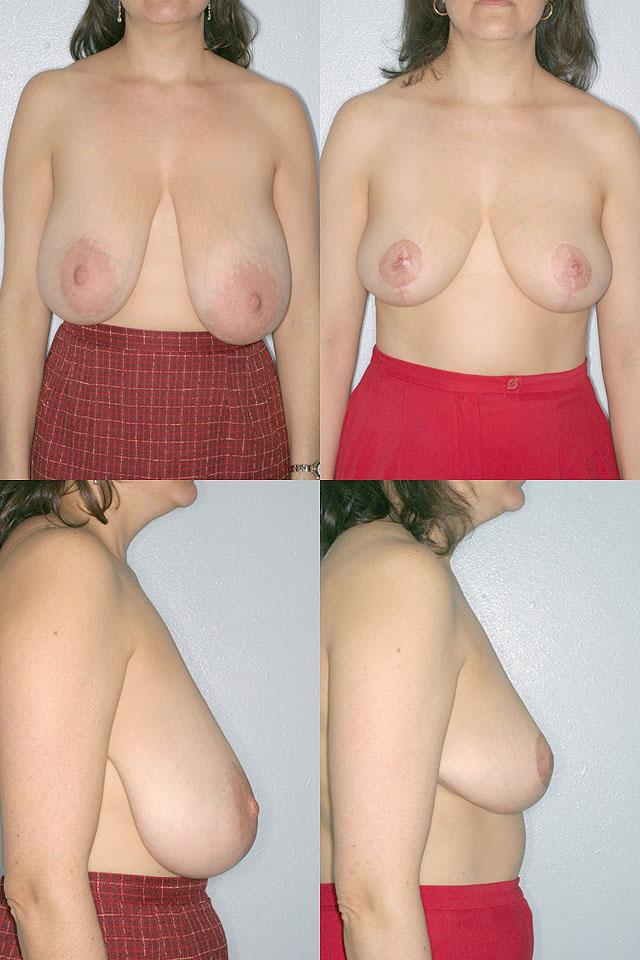 Увеличить грудь массажем с маслами