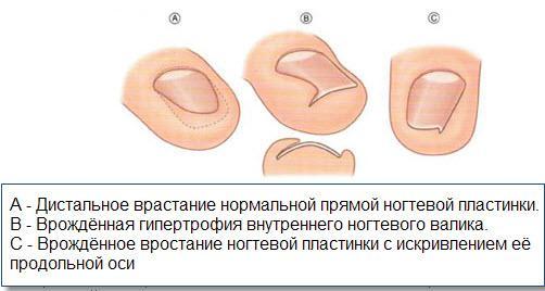 Лечение грибка ногтей ихтиоловой мазью