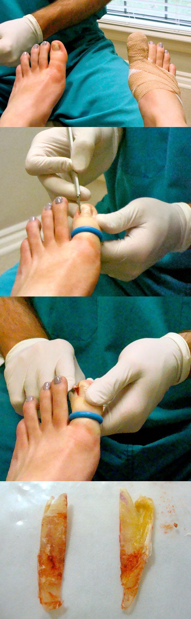 Ломаются ногти причины и лечение