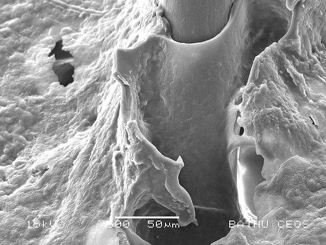 Перхоть под микроскопом