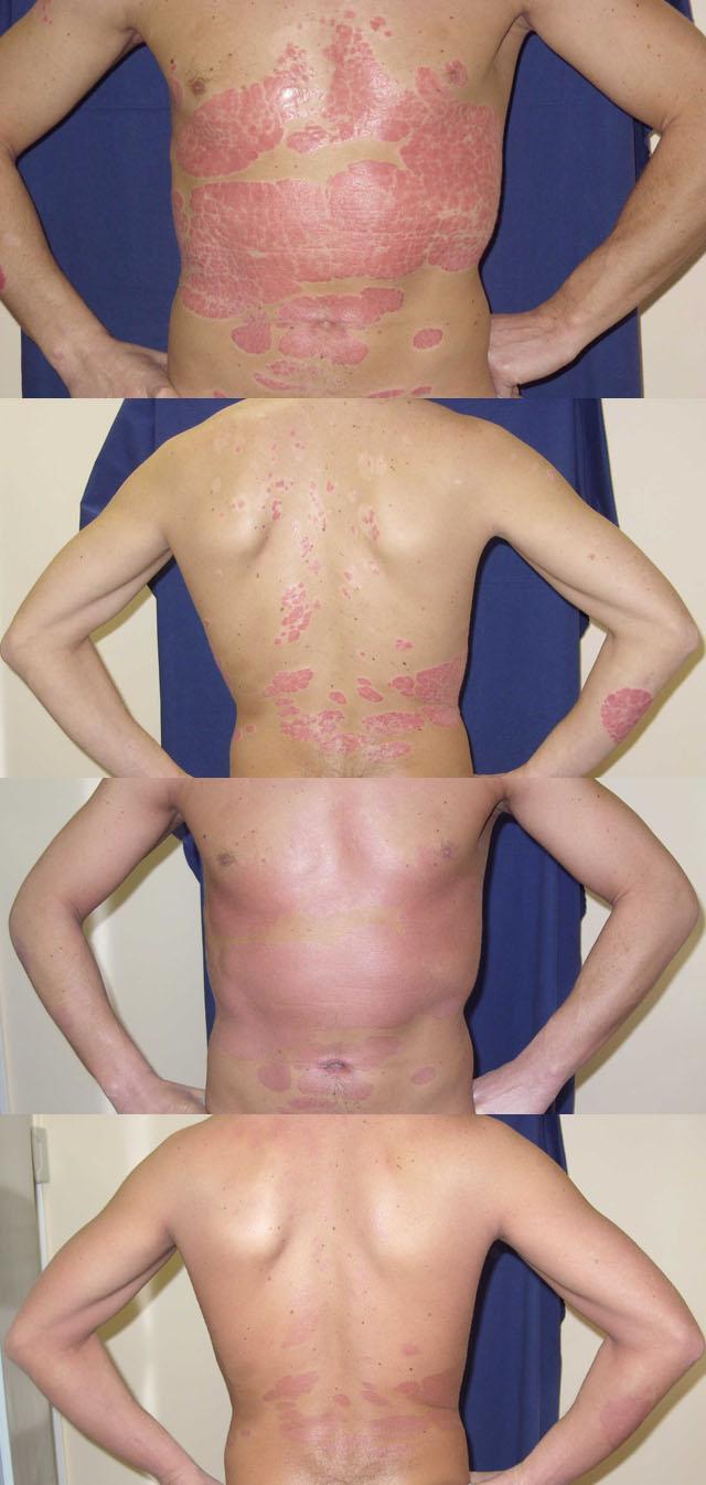 Аюрведа Лечение Псориаза