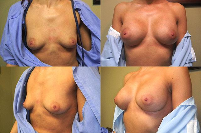 результаты увеличивающей маммопластики фото