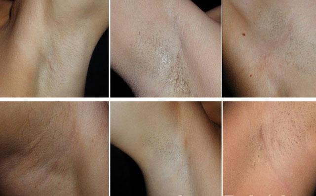 Так выглядят послеоперационные шрамы
