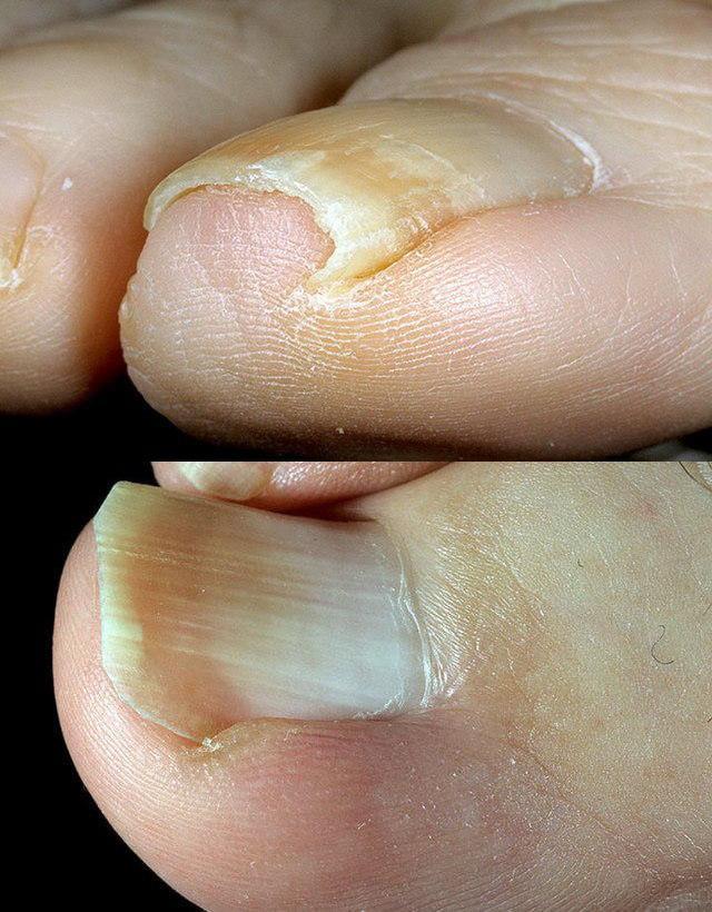 Болит ноготь на ноге лечение