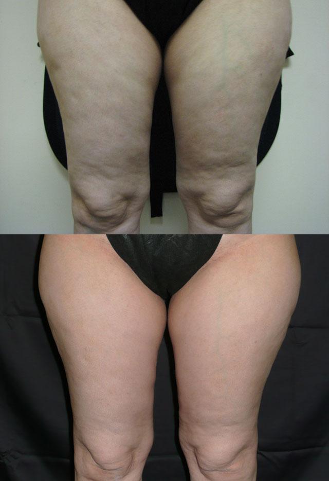 Варикоз нижних конечностей симптомы фото