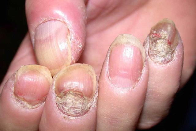 чем лечить псориаз ногтей