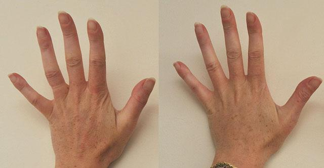 Методы омоложения кожи рук
