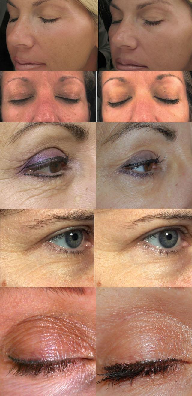 Фракционное лазерное омоложение кожи вокруг глаз