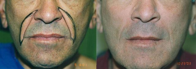Хирургическая коррекция носогубных складок