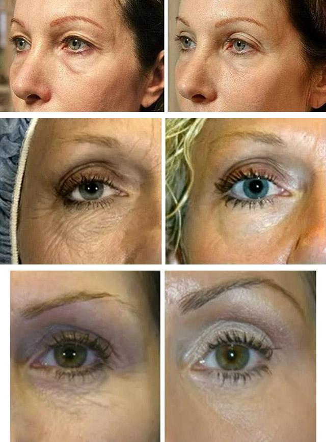 омоложение кожи вокруг глаз в салоне