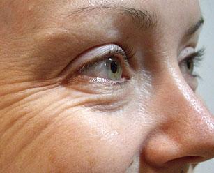 как избавиться от мешков под глазами навсегда косметология