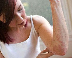 симптомы лечение причины псориаза