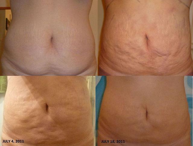 Пример бугристой поверхности кожи и ее обвисания (До операции и стадии реабилитации)