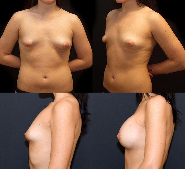 фото тубулярной груди