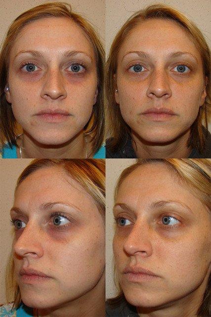 Мезотерапия лица под глазами