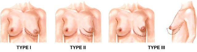 типы тубулярной груди