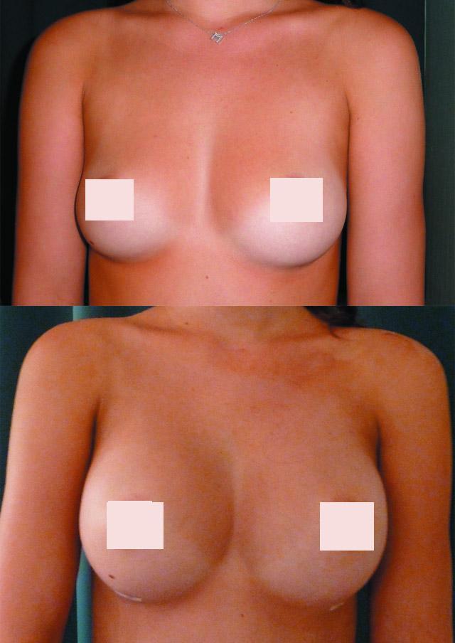 увеличение груди макролайном