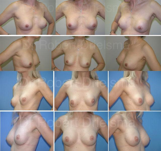 Сколько стоит силиконовая грудь омск