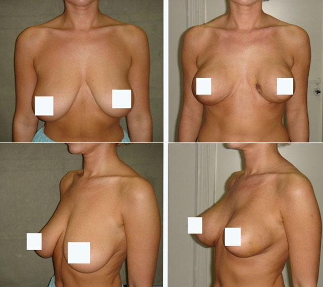 Подтяжка груди нитями Аптос