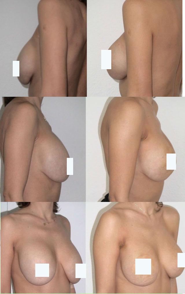 подтяжка груди нитями фото