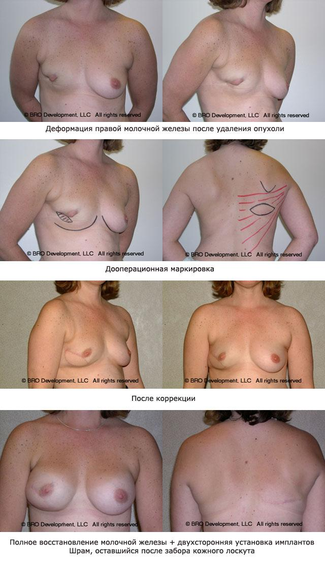 реконструкция груди после мастэктомии