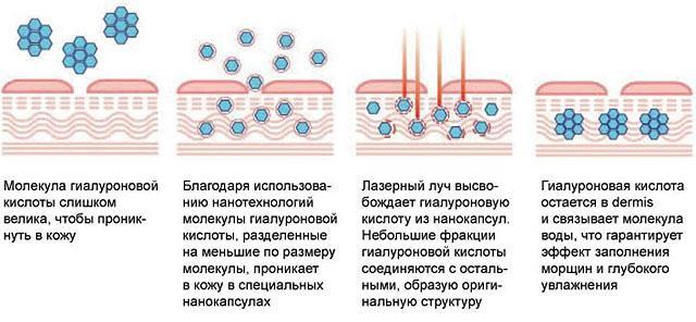 Как работает лазерная биоревитализация