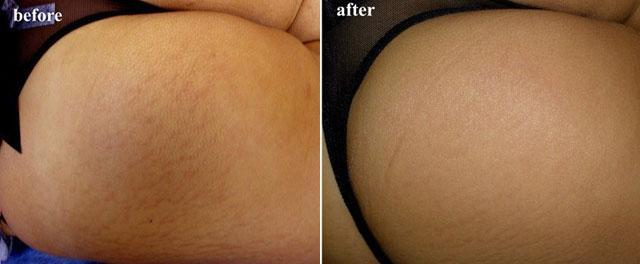 мезороллер от растяжек фото до и после