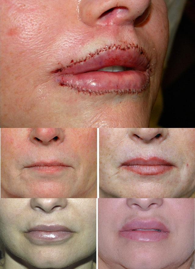 фото увеличение верхней губы