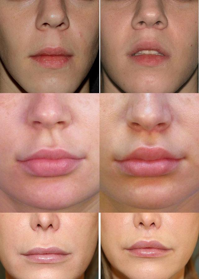 Увеличение губ булхорн